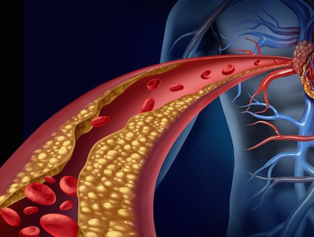 colesterolo-sangue
