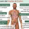 morbo-di-crohn-sintomi-e-cure_6bddfcd7ba2ba1e4213db787797612df