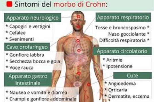 morbo di crohn diagnosi